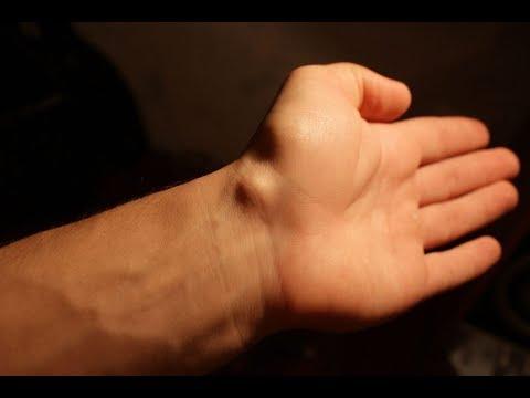 Заболевания позвоночника лордоз и кифоз лечение