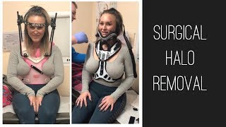 Surgical Halo Removal