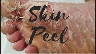 DIY Skin Peel   Healing Cracked Heels !!