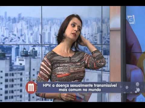 Papillary thyroid cancer hyperparathyroidism