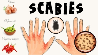 how to cure scabies - Free video search site - Findclip