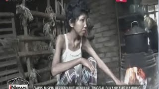 Gadis di Sumsel Terpaksa Diasingkan Orang Tuanya Ke Kandang Kambing - iNews Siang 23/03