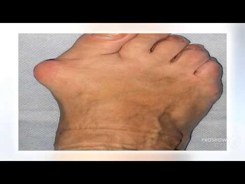Che trattare gambe valgus