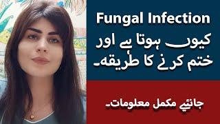Fungal Infection Of Skin In Urdu/Hindi | Fungal Infection Treatment| Fungus Ka Ilaj |Dr Deepa Rajani