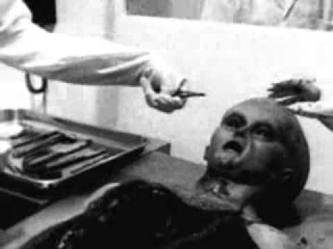 เลเซอร์กำจัดของหลอดเลือดดำใน Novgorod ต่ำ