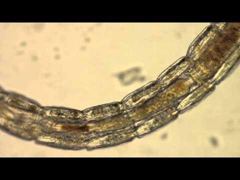 Ellenőrizze a parazitákat a testben
