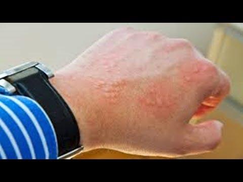 Leite em dermatite atopic