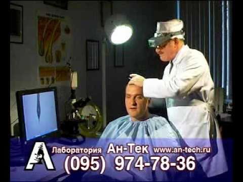 Выпадение волос успешно лечат в Лаборатории Ан-Тек