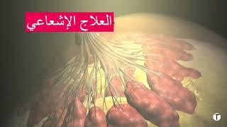 Video علاج سرطان الثدي
