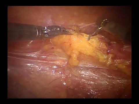 Ouă de enterobioză
