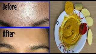 GET RID OF SMALL RASHES ON THE FACE AND SKIN