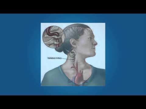 Osteocondrosis de la vértebra lumbar de 1 grado