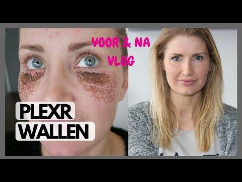 PlexR behandeling onderkant ogen/ wallen - diesnaloomans.nl
