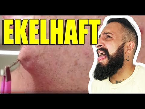 Prostatamassage Einlauf Video