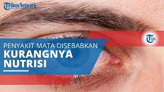 Mengenal Xerophthalmia, Penyakit Mata yang Bisa Sebabkan Kebutaan karena Kurangnya Nutrisi