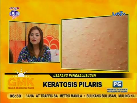Keratosis Pilaris (chicken skin)
