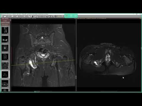 Durere în partea superioară a articulației șoldului