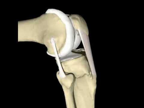 Tratamiento de la articulación de la rodilla en Finlandia