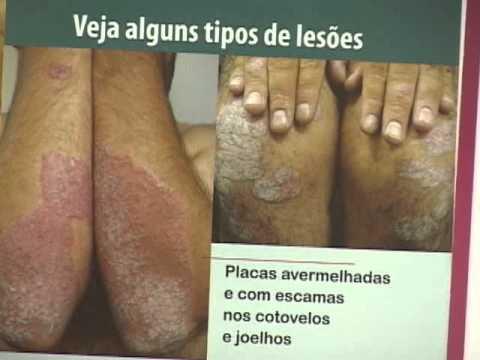 Fração de asd-3 de eczema