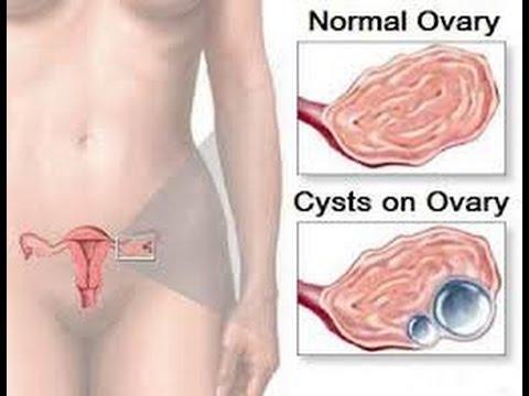 Oleogranulema อวัยวะเพศชายการผ่าตัด
