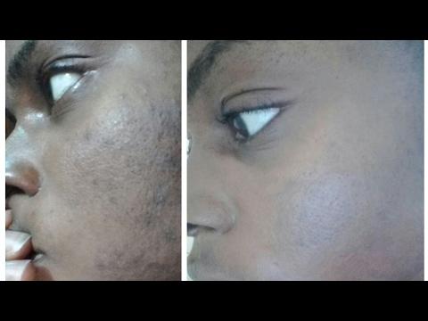 Bodyaga pag-alis ng pigment spots
