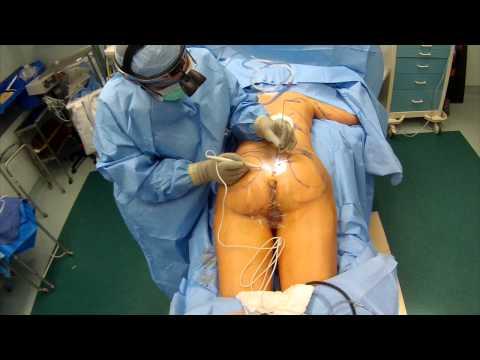 Implanty los pechos y la fotorradiografía