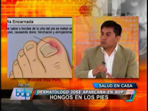 La desaparición de las uñas contagiado con el hongo