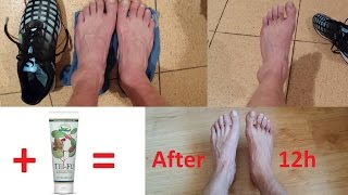Растяжение голеностопа, коленных связок, плечевых, кисти руки, мышц на ноге- домашнее лечение стопы