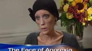 Anorexia's Living Face (CBS News)