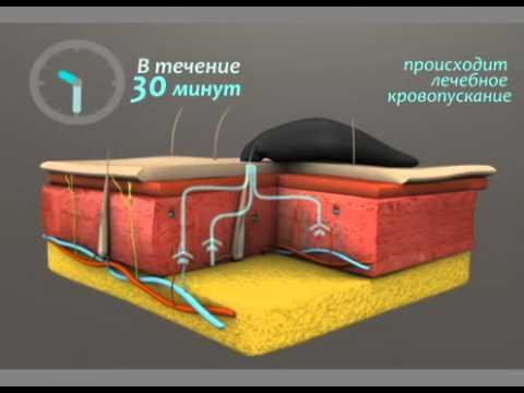 Аденома предстательной железы стадии