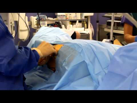 Treatment of intervertebral hernia without surgery laser spine center