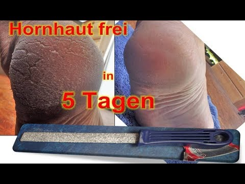 Hornhaut frei in 5 Tagen: Baumarkt-Feile vs Scholl Hornhaut Entferner gegen Schrunden+Risse