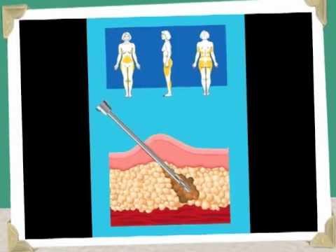 Avantages de la perte de poids de smoothie au chou frisé