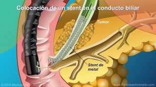 Qué es la colangiopancreatografía retrógrada endoscópica (CPRE)?