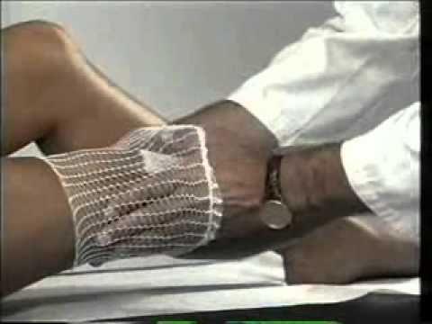 Orthese Meniskusriss des Kniegelenks