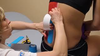 GM kinesiology tape - Bolesti bederní páteře - tejpování