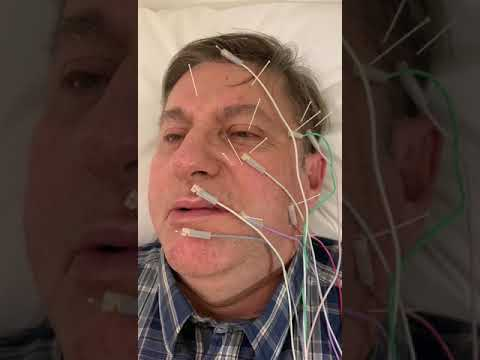 Akupunktur Tedavisi Bitimi