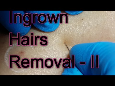 Removing Tough Ingrown Hairs