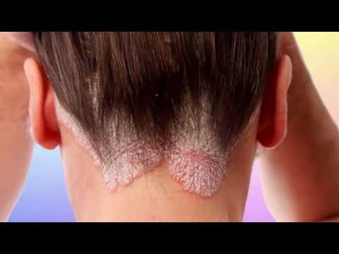 Si on peut faire antitselljulitnyj le massage au psoriasis