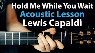Lewis Capaldi   Hold Me While You Wait: Acoustic Guitar Lesson