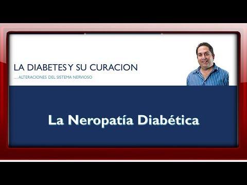 Neuropatía diabética, nervio facial