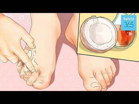 Artrite psoriasica delle articolazioni del piede