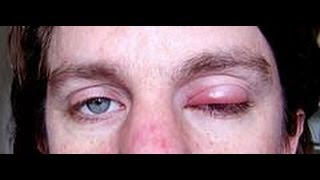 How To Get Rid Of A Stye : how to get rid of styes | eye stye treatment