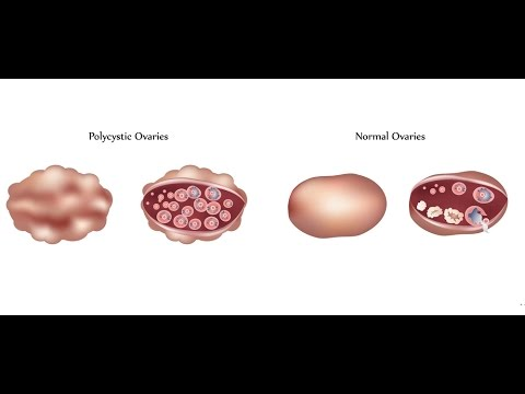 an analysis of the topic of ignorance and the polycystic ovarian syndrome Diabetes care 2016 apr39(4):639-48 doi: 102337/dc15-2577 type 1 diabetes  and polycystic ovary syndrome: systematic review and meta-analysis.
