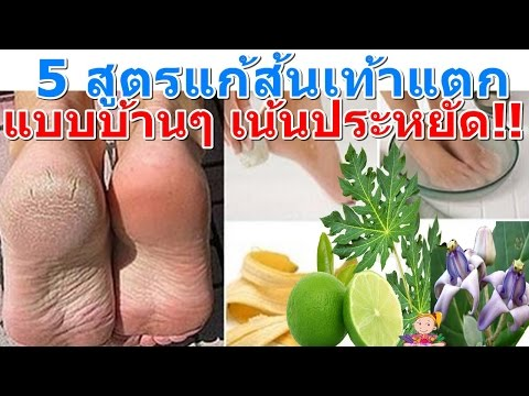Thrombophlebitis ยารักษา