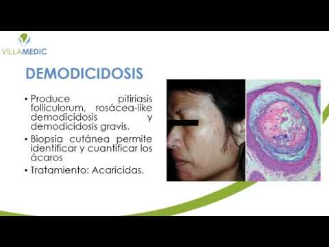 Neuroendocrine cancer kya hai