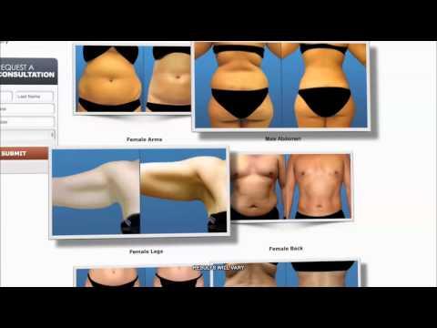 Pierderi ajutoare în greutate
