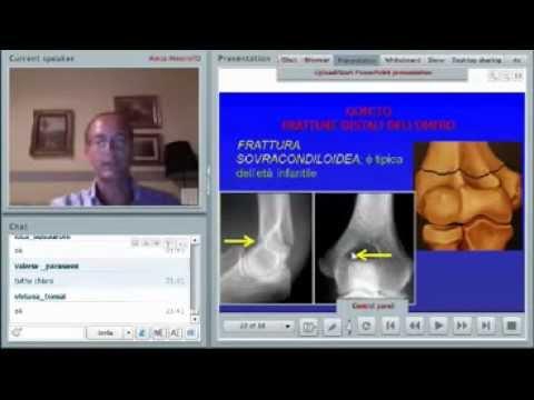 Artrosi dellarticolazione della spalla esercita il video