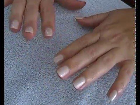 Comme guérir le microorganisme végétal sur longle du pied les rappels