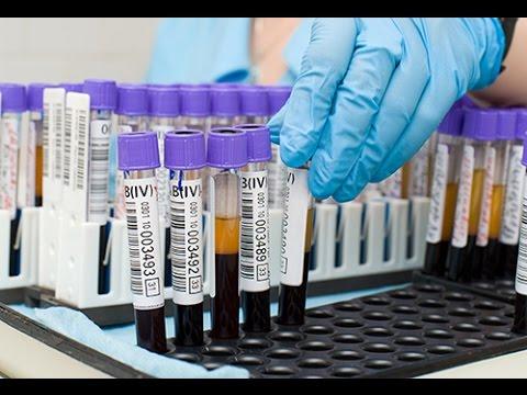 Analyse de sucre dans le sang normal